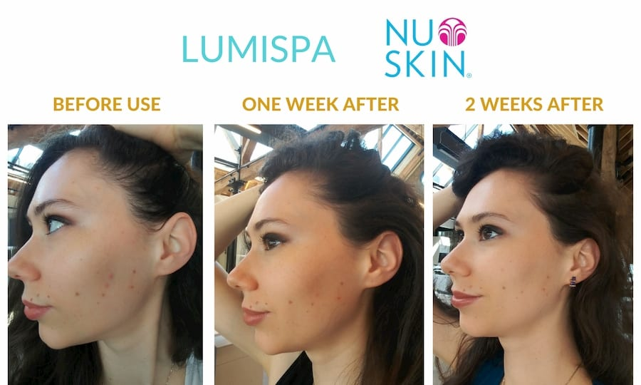 lumispa-before-after